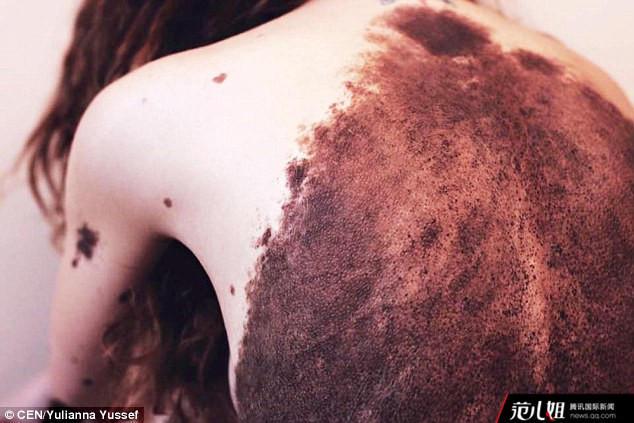 全身斑点成网红:波兰美女全身长满数千胎记 大方晒照成网红