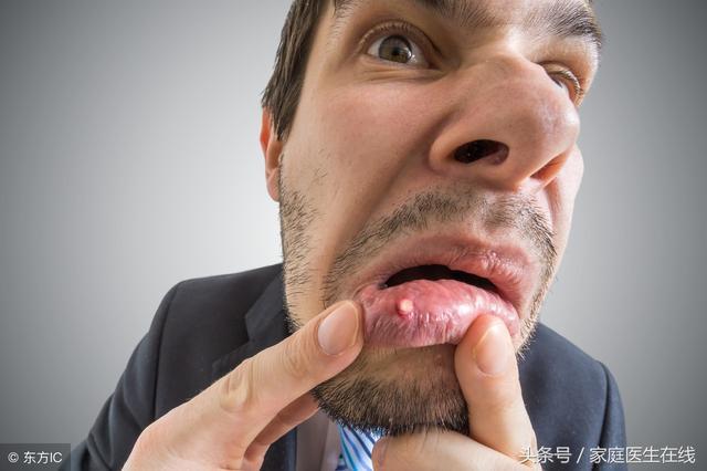 口腔溃疡怎么办最快最有效的方法 网络快讯 第2张