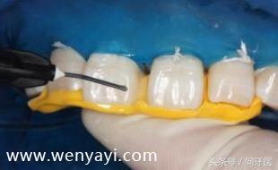 门牙有缝怎么办?给你几个解决办法 网络快讯 第7张