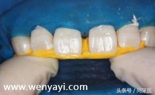 门牙有缝怎么办?给你几个解决办法 网络快讯 第4张