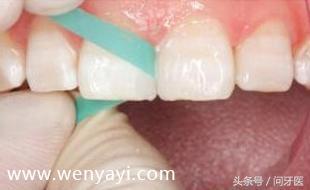 门牙有缝怎么办?给你几个解决办法 网络快讯 第10张