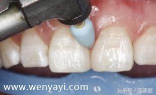 门牙有缝怎么办?给你几个解决办法 网络快讯 第11张