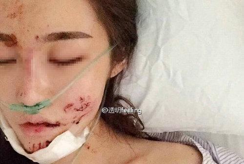 知名网红被毁容:病床憔悴照曝光声带全变脸毁容