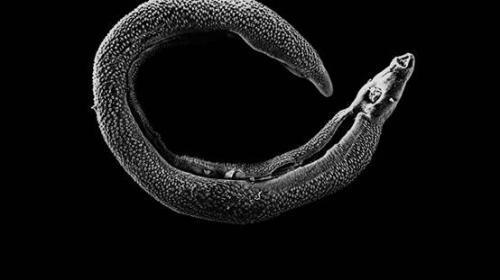 麦地那龙线虫感染病是什么?