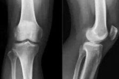膝盖骨刺的治疗方法(这四个小偏