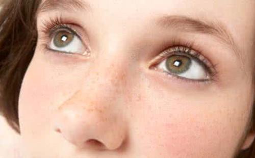 脸上长黄褐斑怎么调理(100%快速清除黄褐斑的方法)
