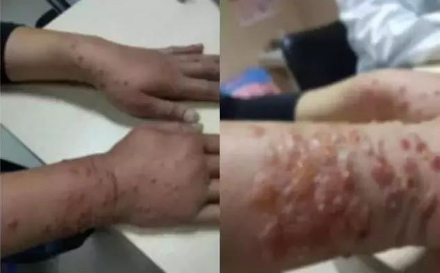 隐翅虫咬人后症状,别在听信谣传了